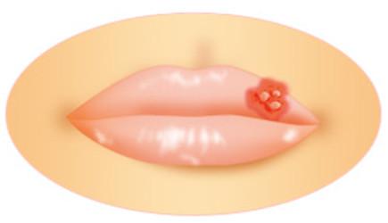 ヘルペスが唇に!原因と即効で治すコツ